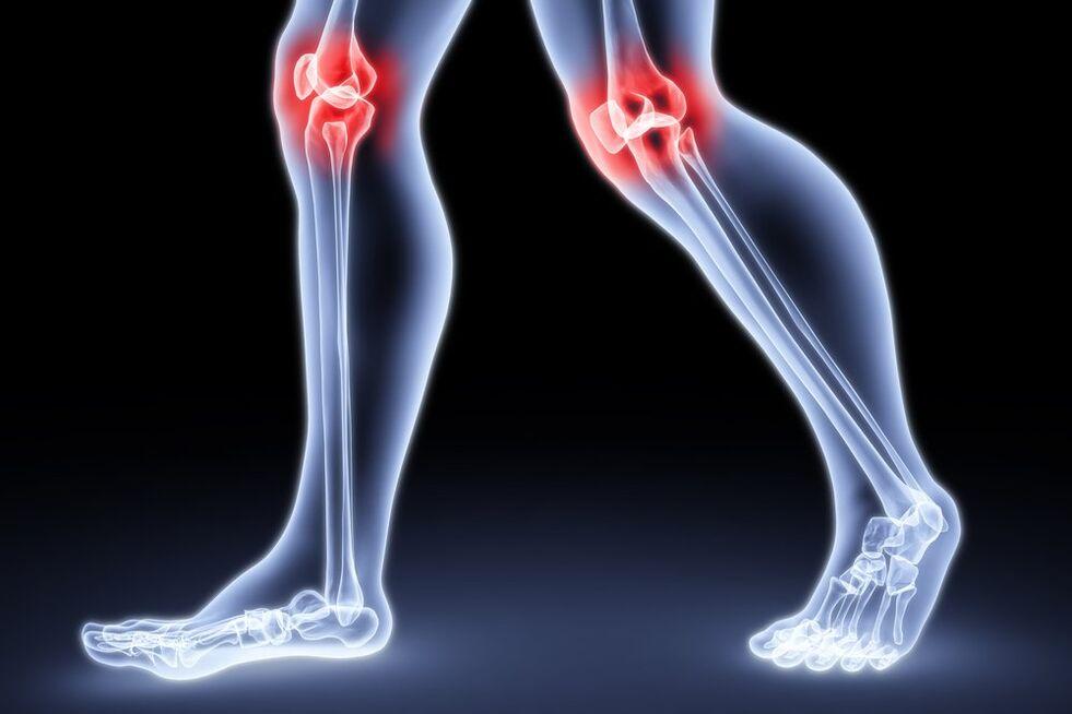 ciprolet ízületi fájdalomtól hemodialízis ízületi fájdalom
